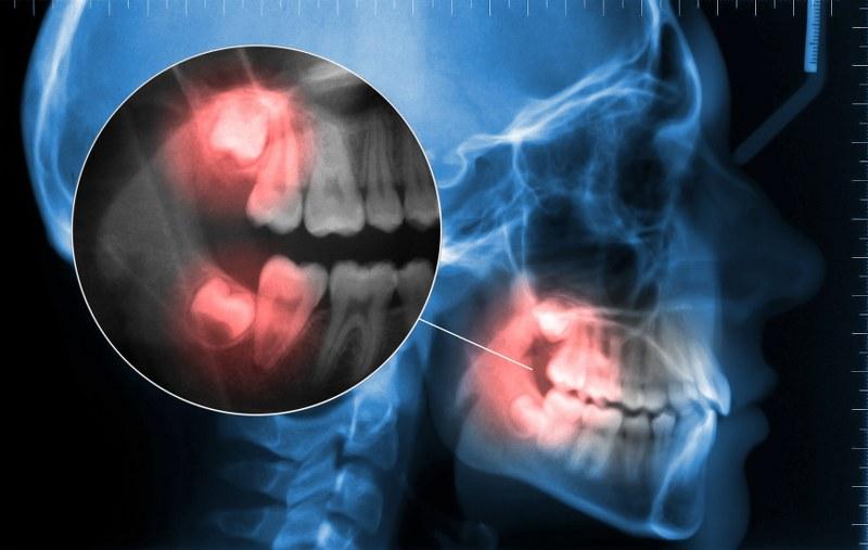 Moorside Dental